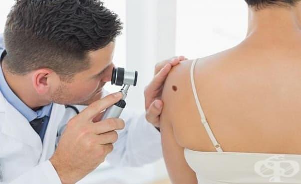 Лекари ще преглеждат безплатно за кожни новообразувания във ВМА - изображение