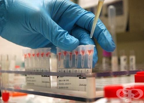 Кръвната група има връзка с риска от развитие на диабет тип 2 - изображение