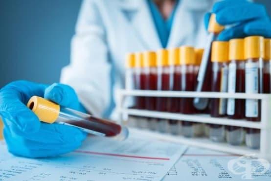 Нов кръвен тест открива рак на простатата, избягвайки инвазивните биопсии - изображение
