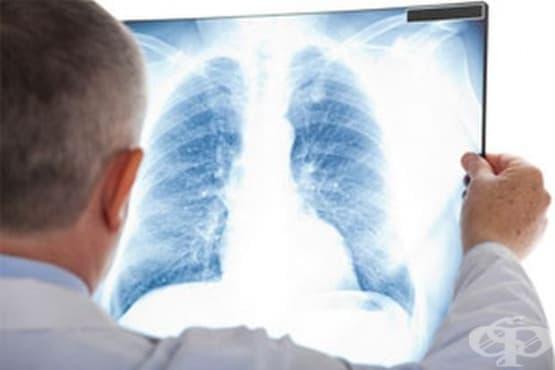 Лятната среща на пулмолозите е посветена на белодробната фиброза и астмата - изображение
