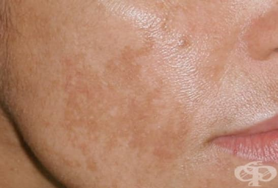 Авторски метод за борба с петната по кожата - консултации с д-р Мария Азарова, 17-18 април, 2019 година, Хил Клиник - изображение