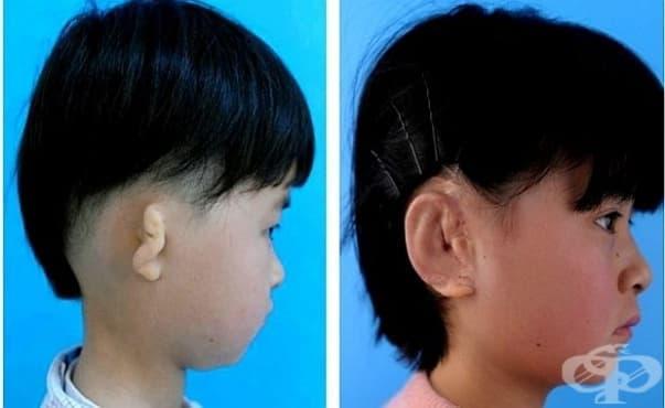 Конструираха и присадиха уши на пет деца - изображение