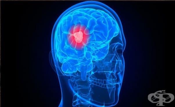 Генетичните рискове за поява на мозъчен тумор са различни при мъжете и жените - изображение