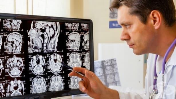 Чревните бактерии оказват пряко въздействие на структурата и функцията на мозъка - изображение