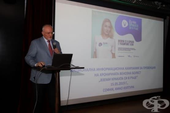 Над 50% от българите страдат от разширени вени - изображение