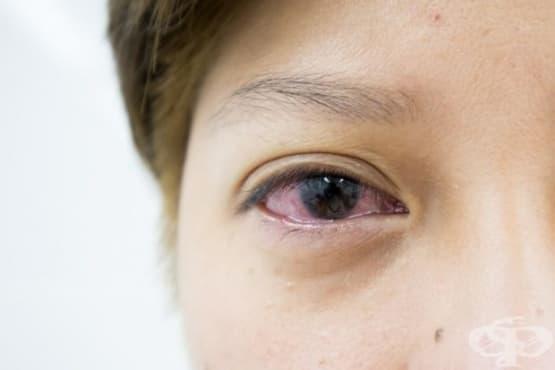 Наногъби унищожават токсините и възпрепятстват ослепяването - изображение