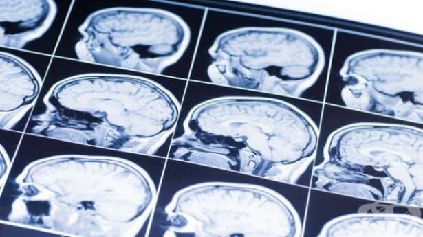 Нанотехнологиите – новото оръжие в борбата с рака на мозъка - изображение
