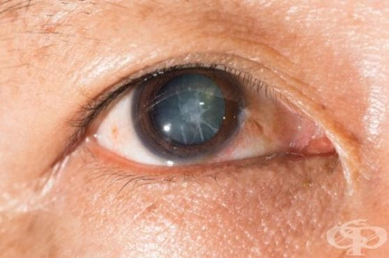 Нови капки за лечение на катаракта ще изместят хирургията - изображение