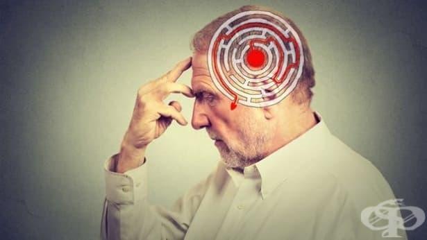 Нови правила за клиничните изпитания на медикаменти за терапия при Алцхаймер - изображение