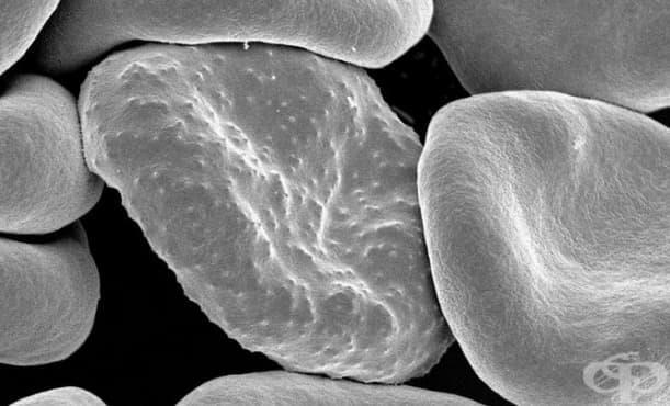 Новите технологии помагат в борбата с маларията - изображение