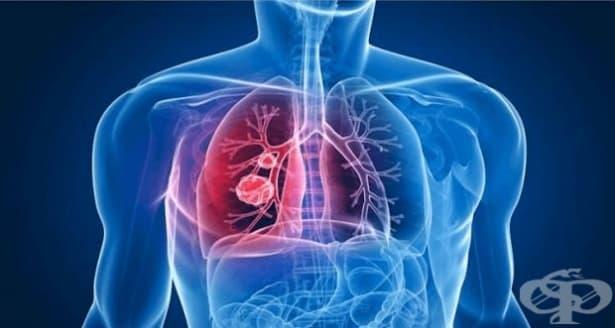 От 18 до 22 март 2019-а ще преглеждат за туберкулоза в цялата страна - изображение