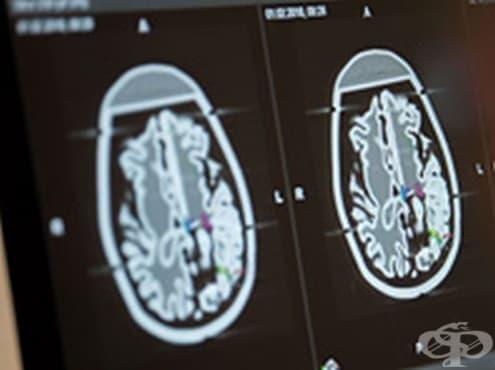 Откриха 50 нови гена, свързани с шизофренията - изображение