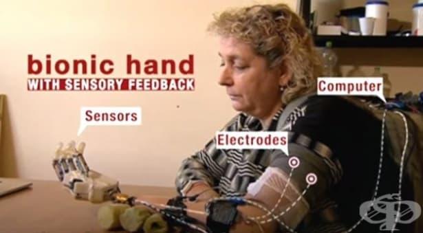 Първата преносима бионична ръка премина половингодишен изпитателен срок - изображение