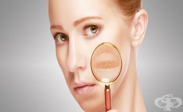 Дерматолози предлагат безплатни прегледи за пигментни петна по лицето във ВМА - изображение