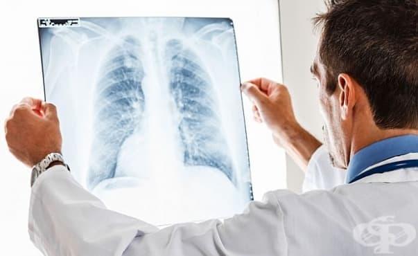 За една година пневмонията отнема живота на над 1000 души в България - изображение