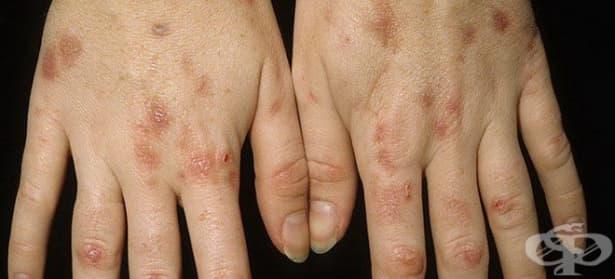 Порфирията убива, недиагностицирана навреме - изображение
