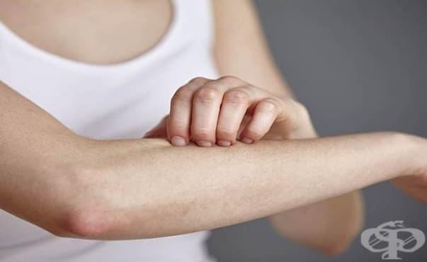 Ще има безплатни дерматологични прегледи във ВМА - изображение