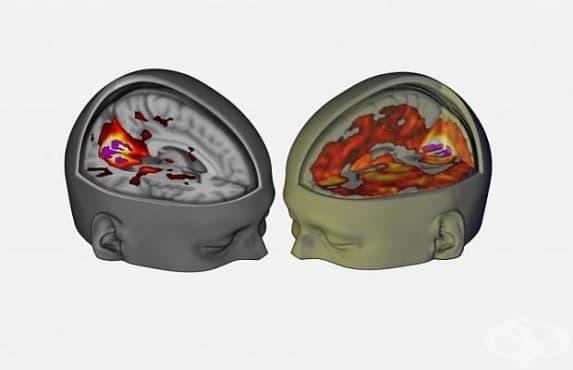 Психеделичните препарати създават различен вид съзнание  - изображение