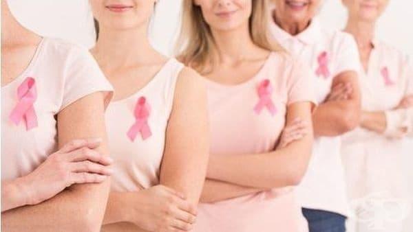 """В МБАЛ """"Надежда"""" осъществиха първото у нас изследване преди и след химиотерапия при жени с рак на гърдата - изображение"""