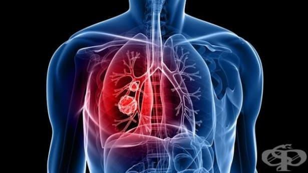 Защо раковите клетки на белия дроб са неподвластни на химиотерапията - изображение