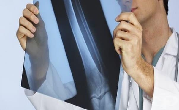 Ракът на костите при децата се развива години преди да се прояви болестта - изображение