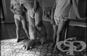 Ракът от Чернобил тепърва ще взема жертви - изображение