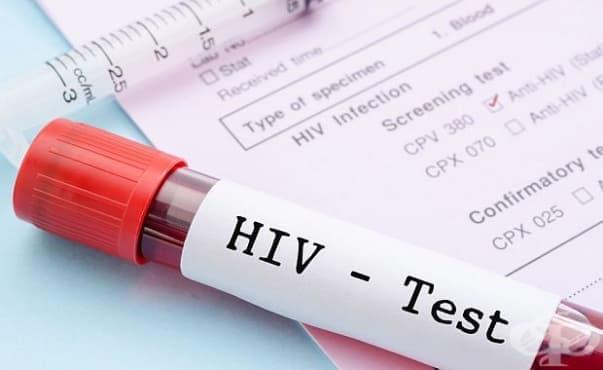 Броят на ХИВ позитивните се е увеличил през тази година - изображение