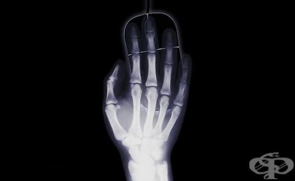 "Клиниката по детска травматология в ""Пирогов"" се нуждае спешно от нов рентген - изображение"