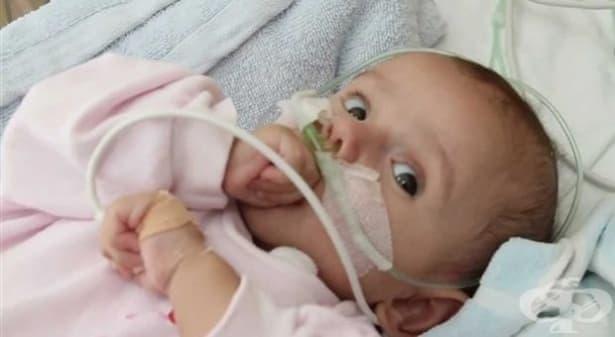 Годишно в България се раждат над 500 деца с вродени сърдечни малформации - изображение