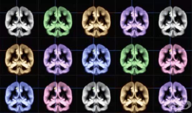 Японски учен: Щастието се крие между двете мозъчни полукълба (Снимка) - изображение