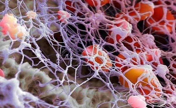 Тялото образува защитен филм, с който предпазва до 12 часа откритите рани - изображение