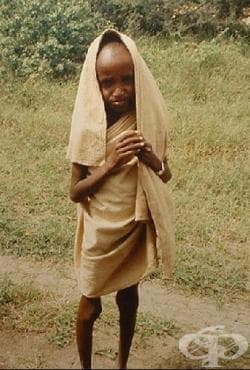 Близо 40 жертви на епидемията от холера в Сомалия - изображение