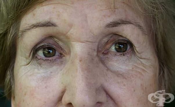 """В пловдивската """"Св. Георги"""" извадиха тел от окото на жена и спасиха зрението й - изображение"""