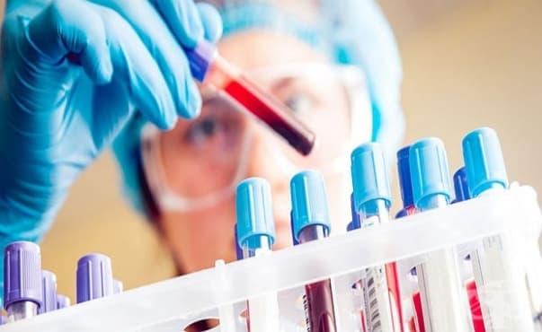 Бърз кръвен тест открива чернодробно заболяване в ранна фаза - изображение