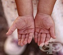 Фондът за лечение на деца в чужбина одобри още 41 деца - изображение