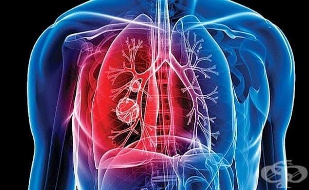 Болните от туберкулоза в страната намаляват - изображение