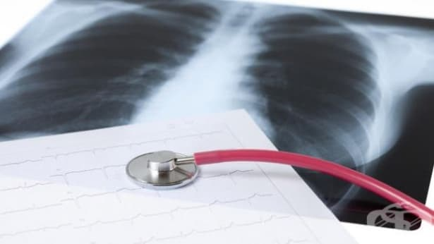 На 24 март се отбелязва Световният ден за борба с туберкулозата - изображение