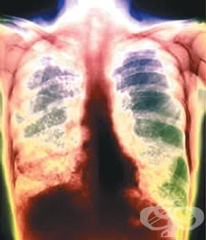 Туберкулозата у нас намалява. 29 болници ще преглеждат безплатно от 28 март до 1 април    - изображение