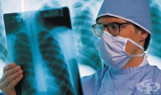 В цялата страна се провеждат безплатни прегледи за туберкулоза - изображение