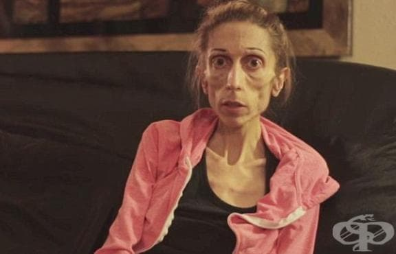 Умираща от анорексия актриса: Никоя болница не ме приема - изображение
