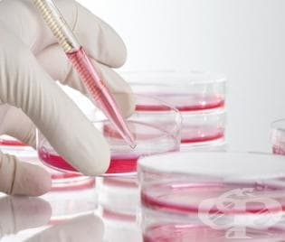Мобилен кабинет за изследване на ХИВ/СПИН ще работи на Витоша - изображение