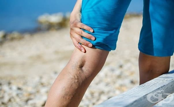 Страдащите от венозна тромбоза по-често търсят болнична помощ през лятото - изображение