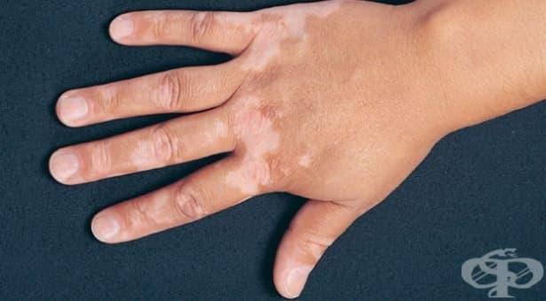Витилигото ще се лекува чрез ултравиолетово облъчване и лекарство за артрит - изображение