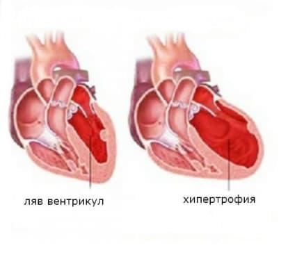 Левостранна сърдечна недостатъчност - изображение