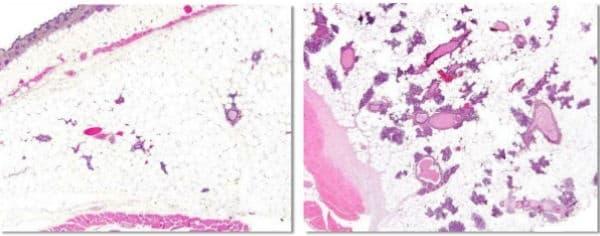 Физиологична хиперплазия - изображение