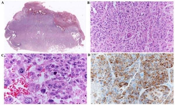Злокачествени меланинообразуващи тумори - изображение