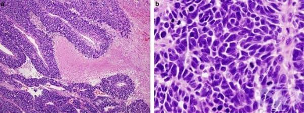 Дребноклетъчен белодробен карцином - изображение