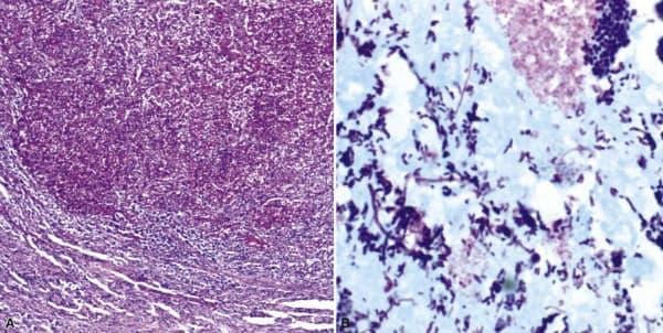 Абсцес на белия дроб - изображение