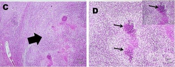 Абсцес на черния дроб - изображение