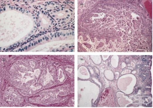 Аденокарцином на хранопровода - изображение